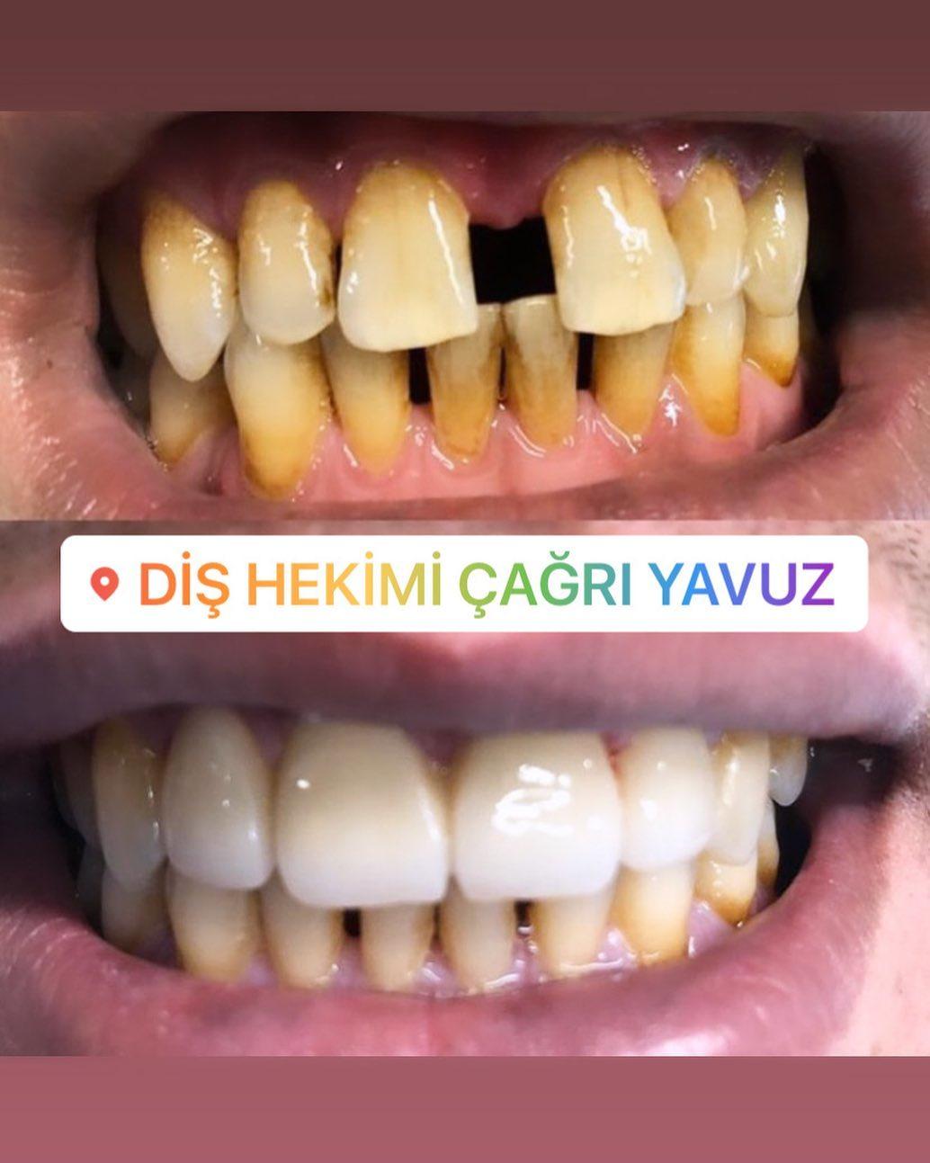 Dişler arası boşluklardiastemalar sadece estetiği değil konuşmayı da etkiler değişik