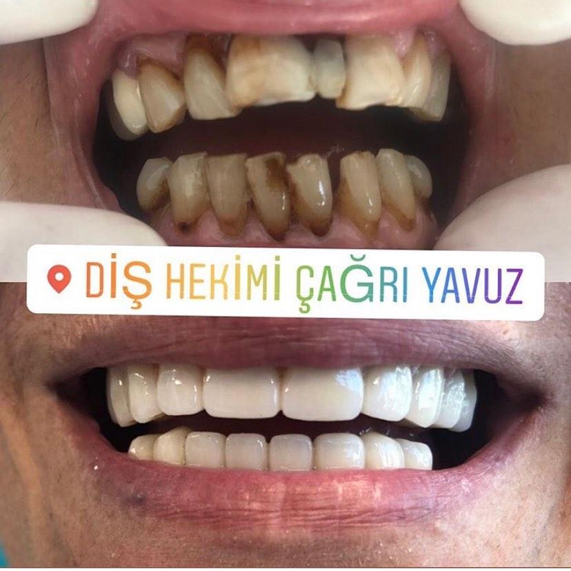 NEDEN ZİRKONYUM DİŞ KAPLAMAZirkonyum diş kaplamalarının ışık geçirgenliği doğal dişimize