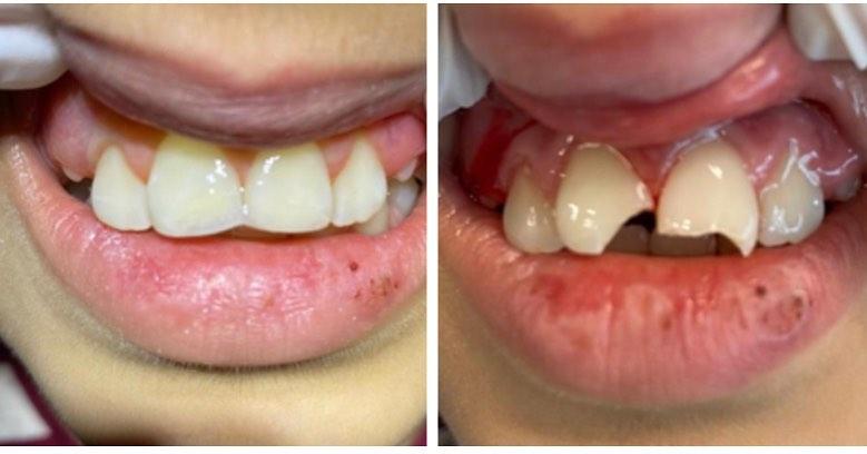 Travma sonucu madde kaybına uğramış genç dişlerde sadece dolgu ile